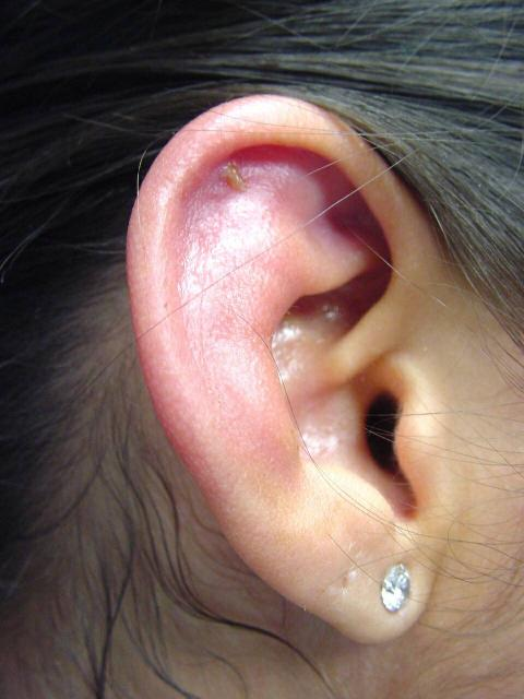 One of the most infection-prone areas of the body is the ears.